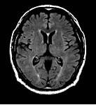 MRI検査1