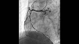 血管撮影検査2