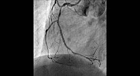 血管撮影検査3